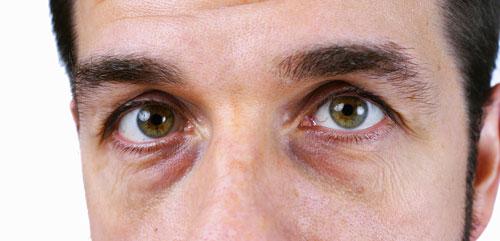 ۴ علت رایج پف زیر چشم