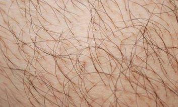 مشکلاتی که از طریق موهای بدن آشکار میشوند