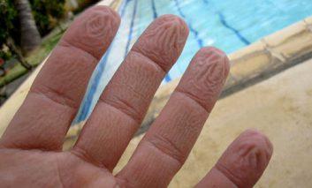 چرا پوست انگشتان دست و پا در آب چروک میشود؟