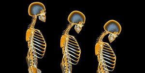 از هر ۴ زن بالای ۶۵ سال، ۱ نفر پوکی استخوان دارد