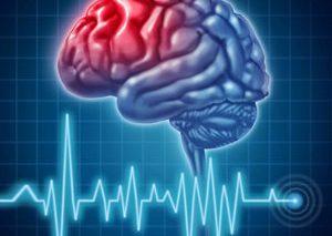 با علائم سکته مغزی آشنا شوید