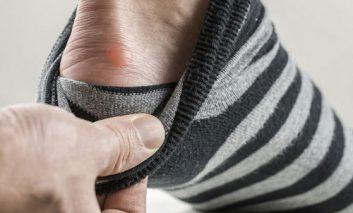نحوه مراقبت از تاول پا
