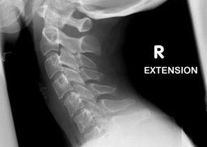 چرا گردن دچار آرتروز میشود؟
