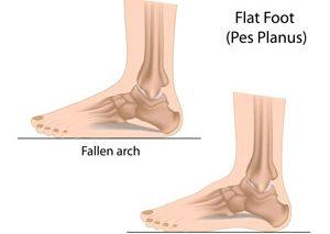 آیا پاهایتان صاف است؟