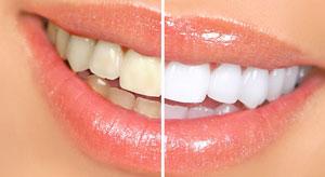 چگونه زردی دندانها را از بین ببریم؟