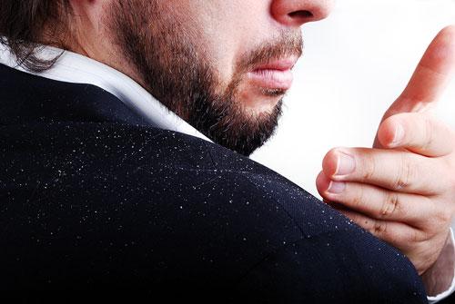 ۷ راه برای درمان فوری شوره سر