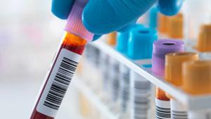 آزمایش خون سادهای که جان شما را نجات میدهد