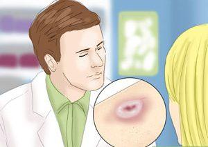 چگونه سرطان پوست را شناسایی کنیم؟