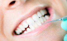 قبل از جرمگیری دندانها، این نکات را بخوانید