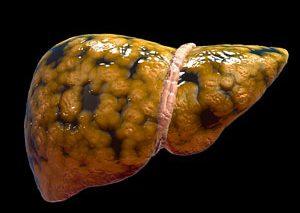 علائم، علت و روش درمان کبد چرب