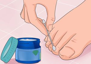 روشهایی طبیعی برای رفع مشکلات مربوط به ناخن