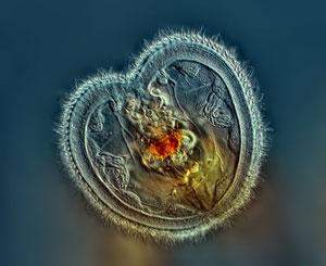 روتیفر؛ برنده مسابقه عکاسی میکروسکوپی