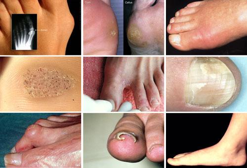 بیماریهای پا؛ از میخچه تا زگیل