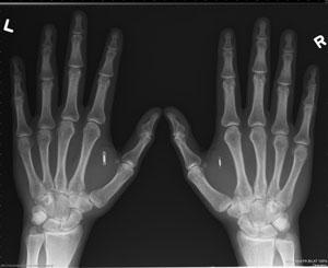 تزریق چیپ NFC زیر پوست دست، جهت ذخیره اطلاعات حساب بیتکوین