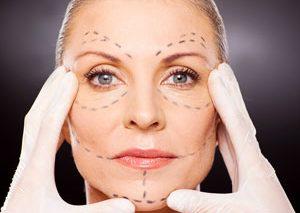 جراحی زیبایی کشیدن پوست صورت (ریتیدکتومی)