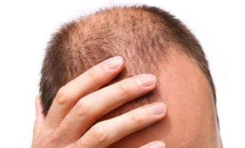 علل اصلی ریزش مو