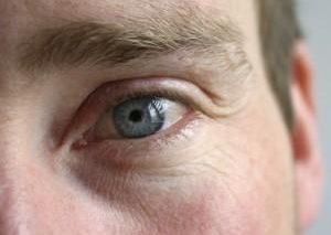 بررسی میزان سلامتی مغز از طریق چشمها