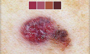 علائم هشداردهندۀ سرطان پوست