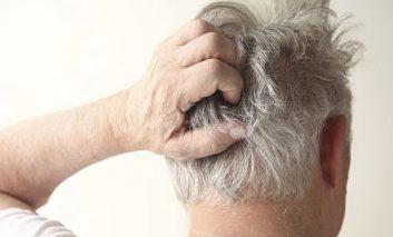 علل رایج خارش پوست سر