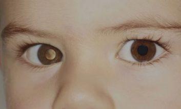 گوشیهای هوشمند میتوانند سرطان چشم را شناسایی کنند