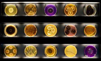 موزه میکروب؛ اولین «باغ وحش» میکروبها در جهان