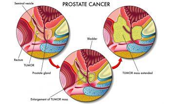 ۷ نشانه سرطان پروستات که حتماً باید بدانید