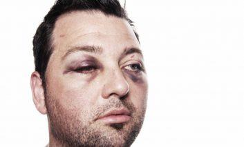 چگونه کبودی اطراف چشم را سریع از بین ببریم؟