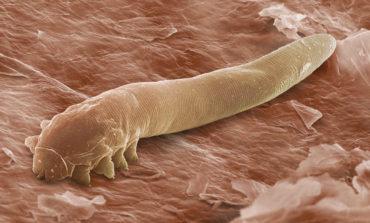 ۱۰ نشانه وجود انگل در بدن
