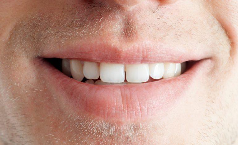 نشانههای سرطان دهان