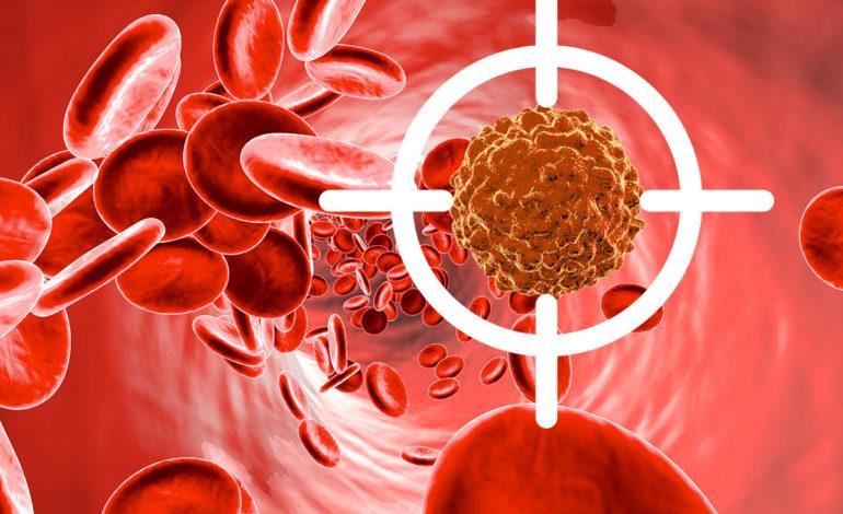 تشخیص به موقع سرطان خون