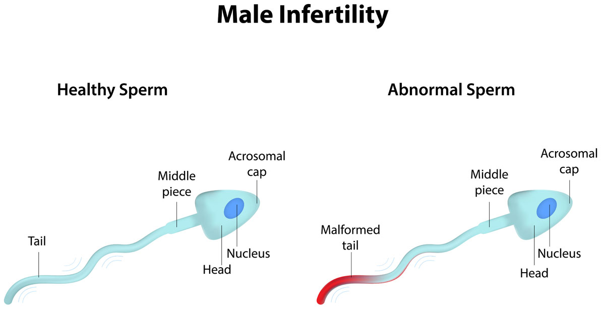 the-growing-problem-of-male-infertility-alldaychemist-health-blog