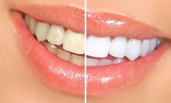 آیا سفید کردن دندانها با کیتهای سفیدکننده مضر است؟