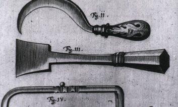 برگی از تاریخ: ابزار پزشکی رعبآور و عجیب قدیمی