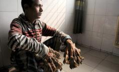 رخدادهای نادر پزشکی: مرد درختی