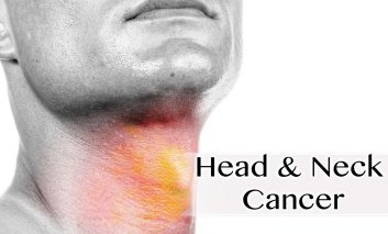 تشخیص به موقع سرطان سر و گردن