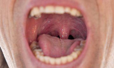 تورم زبان کوچک: علل، علائم، درمان