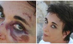 یک ترفند عالی برای پنهان کردن کبودی صورت و بدن