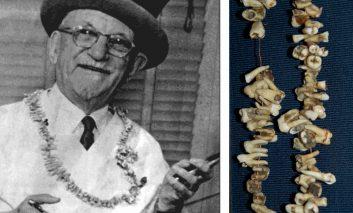 کارناوال جذاب بیرحمترین دندانپزشک امریکا