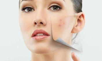 روشهای خانگی فوقالعاده موثر برای درمان آکنه و جوش صورت