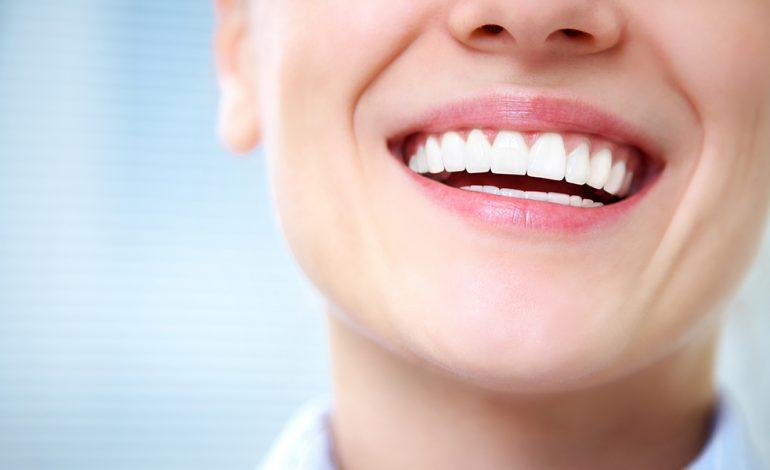مزایای روکش کردن دندانها