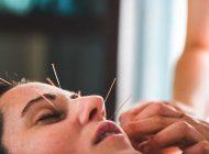 ترمیم و جوانسازی صورت با طب سوزنی