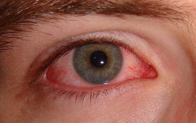 ۱۰ درمان خانگی برای برطرف کردن التهابات آلرژیک چشم