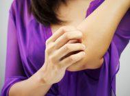 ۱۰ درمان خانگی برای مبارزه با عفونت قارچی پوست