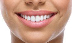 ۱۰ درمان خانگی برای از بین بردن خط خنده