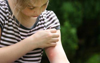 ۱۰ درمان خانگی برای نیش حشرات (قسمت اول)