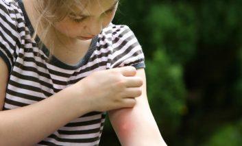 ۱۰ درمان خانگی برای نیش حشرات (قسمت دوم)