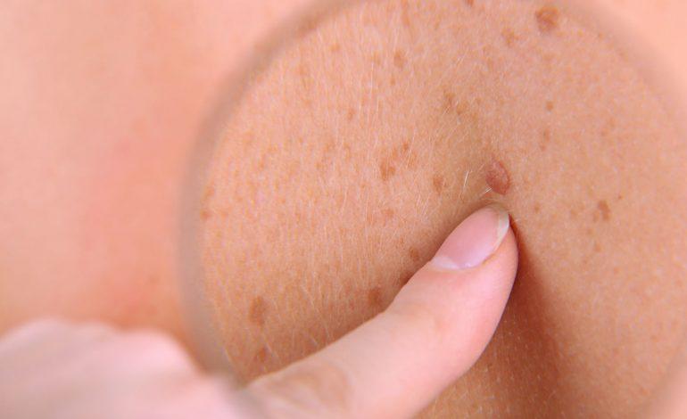 بررسی سرطان پوست