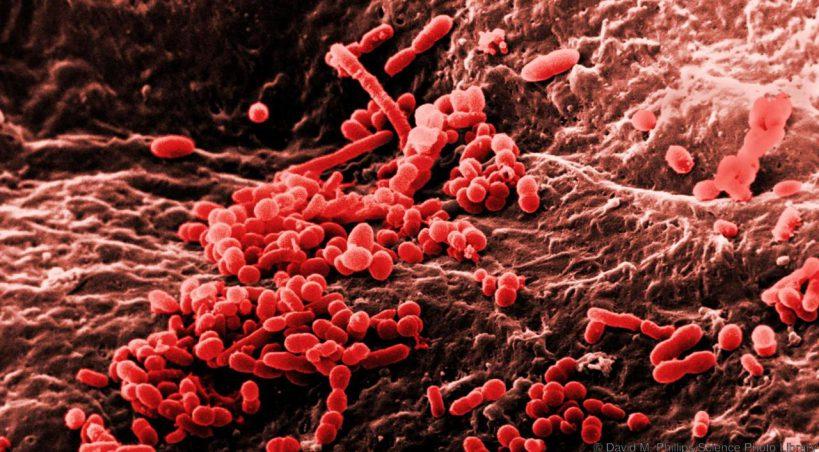 یک میکروب کثیف  و عفونتزا که میتواند در گوشت کمین کند!