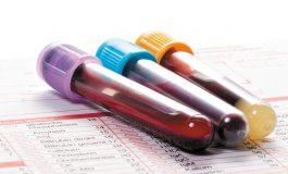 رویکردی جدید برای تشخیص سرطان