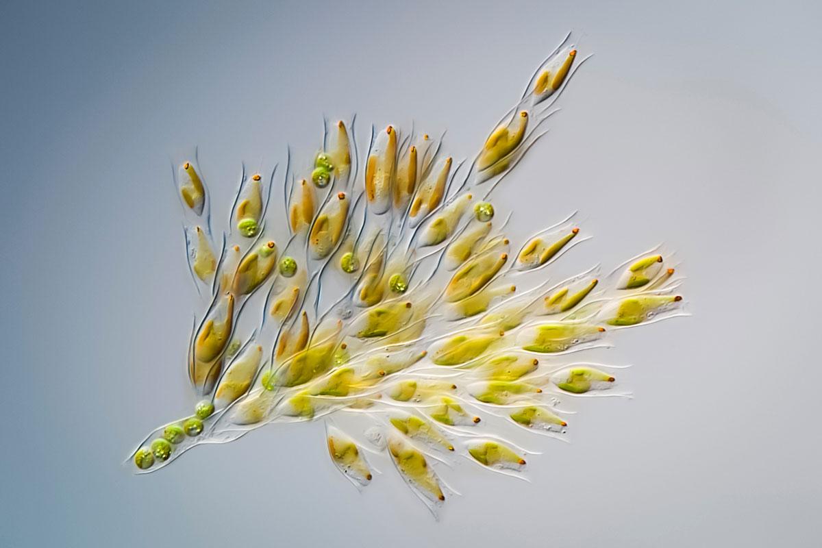 3- این یک جلبک طلایی است که در دریاچهها و حوضچههای سراسر دنیا زندگی میکند.